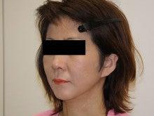 シンシア~Sincerely Yours 銀座の美容外科・美容皮膚科-フェイスリフト 口コミ 名医 ダウンタイム