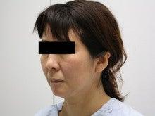 シンシア~Sincerely Yours 銀座の美容外科・美容皮膚科-フェイスリフト 口コミ 名医 評価
