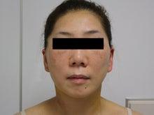 シンシア~Sincerely Yours 銀座の美容外科・美容皮膚科-フェイスリフト SMAS リガメント
