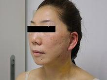 シンシア~Sincerely Yours 銀座の美容外科・美容皮膚科-フェイスリフト 効果 年齢