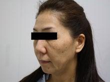 シンシア~Sincerely Yours 銀座の美容外科・美容皮膚科-リテイニング リガメント SMAS