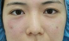 美容外科医 セオリークリニック筒井のブログ