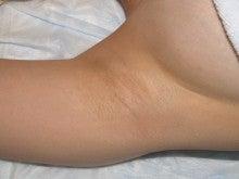 日本美容外科学会認定専門医Dr.石原の診療ブログ~いろんなオペやってます~-わきが術後5年