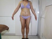 シンシア~Sincerely Yours 銀座の美容外科・美容皮膚科-大量脂肪吸引 名医 口コミ 効果
