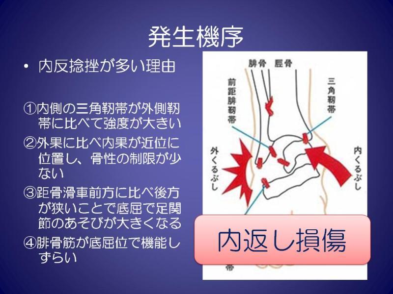 足関節捻挫 ~病態と手術の目安~|整形外科・スポーツ整形の ...