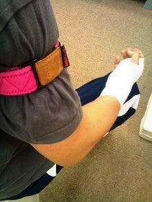 加圧トレーニング専門スタジオZoneのスタッフブログ-骨折加圧