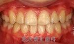 池袋3分の矯正歯科-キレイな歯並びで笑顔を作ります
