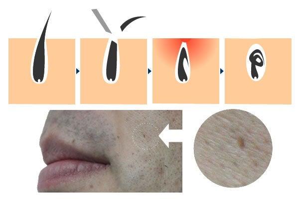 埋没毛の正しい治し方~脱毛クリームで取れるの …