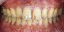 高松歯科口腔外科クリニックのブログ-ホワイトニング術前