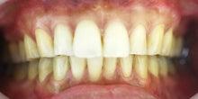 高松歯科口腔外科クリニックのブログ-ホワイトニング術後