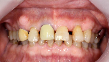 高松歯科口腔外科クリニックのブログ