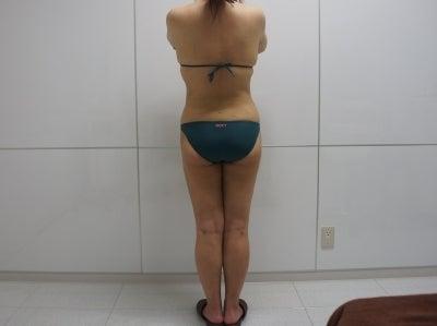 シンシア~Sincerely Yours 銀座の美容外科・美容皮膚科-全身脂肪吸引 ベイザー 安 口コミ 名医