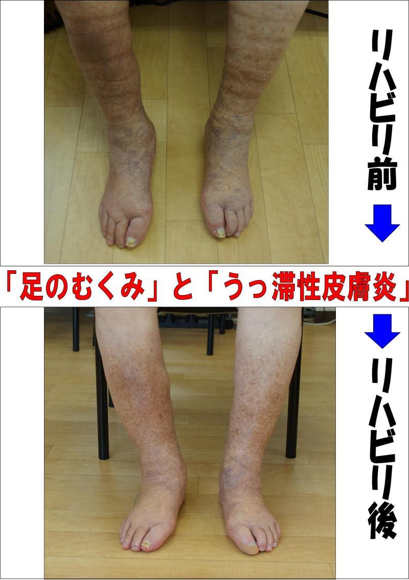 足のむくみ」と「うっ滞性皮膚炎...