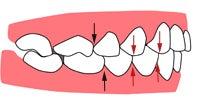 $池袋3分の矯正歯科-キレイな歯並びで笑顔を作ります