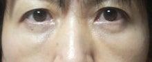 きよちゃんのブログ-術後1ヵ月