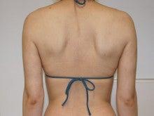 シンシア~Sincerely Yours 銀座の美容外科・美容皮膚科-二の腕 脂肪吸引 VASER ベイザー