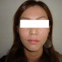 小顔矯正 施術の内容…