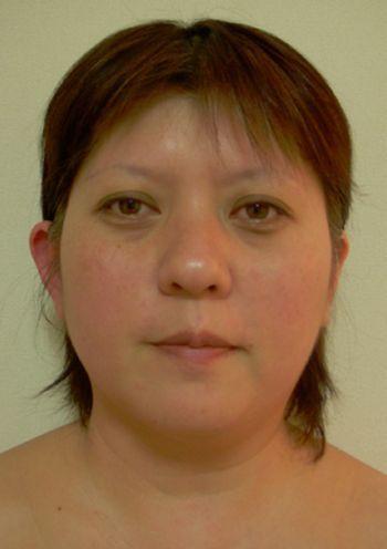 骨まで美しく~マイナス10歳の若返り術~神戸市垂水区エステサロン&スクールVERY☆美骨メソッド・小顔造形・頭蓋骨矯正