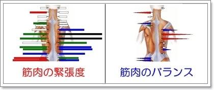 背骨・骨盤のゆがみ専門 福岡 まごころカイロプラクティック-筋肉の緊張度2
