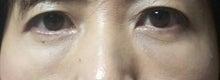 きよちゃんのブログ-術後2ヶ月目