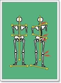 背骨・骨盤のゆがみ専門 福岡 まごころカイロプラクティック-背骨イラスト