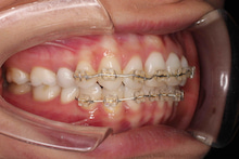 歯科医院スタッフあいちゃんのマウスピース矯正&部分矯正日記