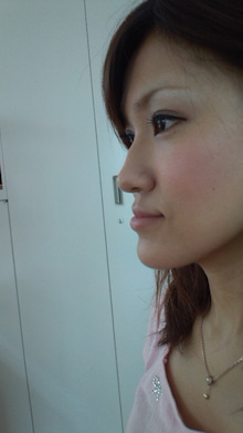 顎変形症~歯列矯正・外科手術~闘病記-DCF00100.jpg