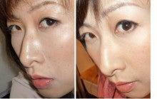 新・美容整形 鼻を高く小顔に・バストアップ~美容矯正で全身美人~