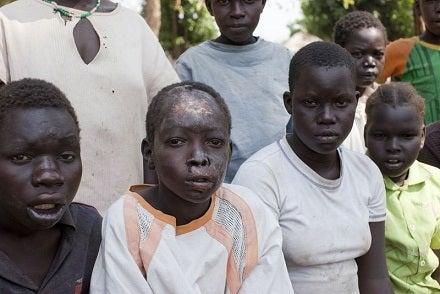 頷き病:今アフリカで急速に広ま...