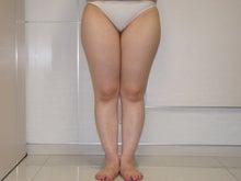 シンシア~Sincerely Yours 銀座の美容外科・美容皮膚科-ベイザー ふくらはぎ 足首 東京 脂肪吸引