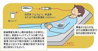 洗浄 方法 胃