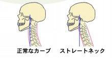 ほぼ…肩こりを治せる人になる方法-ストレートネック