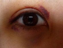 内出血 早く治す 目の周り