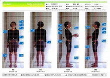大阪心斎橋なんば 姿勢矯正・内臓整体・自律神経の調整で症状改善。 整体Re:Body!(リボディ)-姿勢矯正 心斎橋難波なんば 整体 O脚