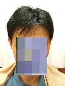 円形脱毛症・薄毛・かつらサロンのつれづれ日記
