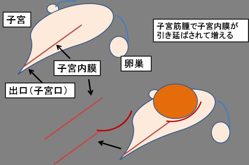 子宮 筋腫 3 センチ