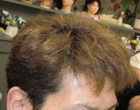 【薄毛・ハゲ撲滅計画!】山県市の理容室ヘアーサロンさつま