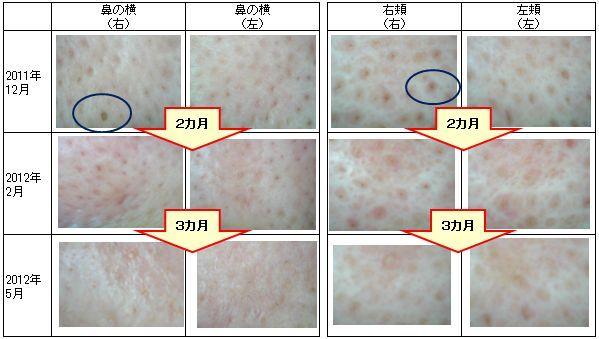 高岡でツヤ肌、健康美人サクララン-肌モニターさま201205-1