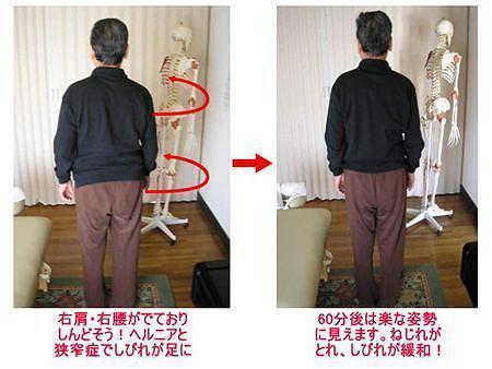 西東京市ひばりヶ丘駅の整体の腰痛、ぎっくり腰、ヘルニア、狭窄症、坐骨神経痛、股関節痛の方の例