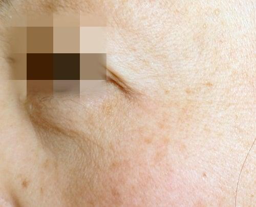 3ヶ月経過素肌