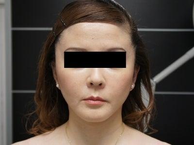 シンシア~Sincerely Yours 銀座の美容外科・美容皮膚科-リテイニングリガメント 後戻り 東京 口コミ