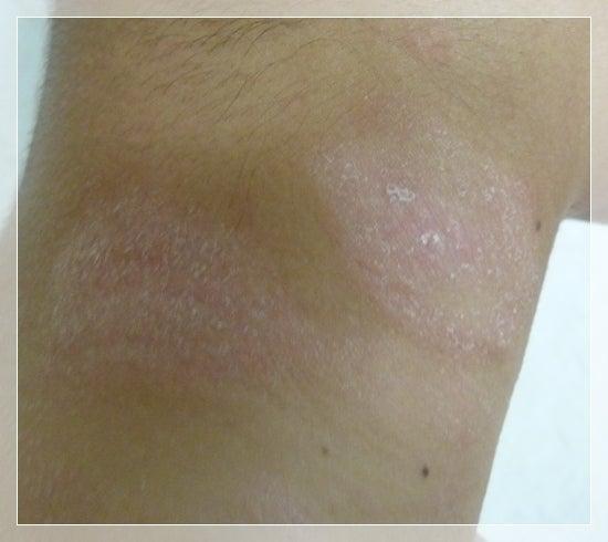 アトピーの保湿に奇跡の肌砂糖@口コミ・効果・感想-奇跡の肌砂糖 アトピー性皮膚炎