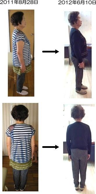 西東京市ひばりヶ丘駅の整体の30年間の膝痛改善で食事制限なしで下腹へこみダイエット79歳