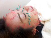 美容鍼灸大阪ほうれい線