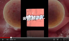 $落合歯科医院のブログ-歯周病動画よりの一コマ