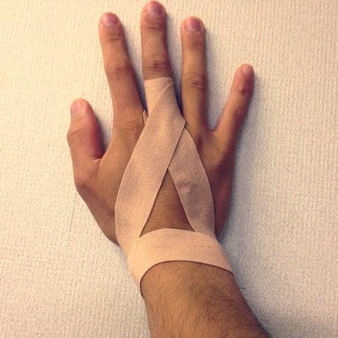 「バネ指 テーピング」の画像検索結果