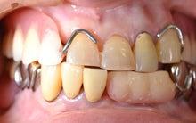 ミネ歯科医院 歯のこと、口のこと、                皆で一緒に勉強しようよ。