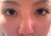 $asahiのブログ-術後三ヶ月目
