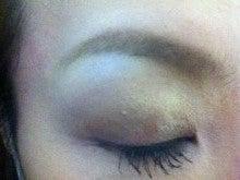 の イボ 目 周り 【顔の角質?イボ?薬は買わない!】皮膚科で私が治した目の周りのポツポツの取り方!