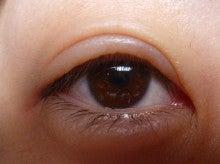 泣い た あと 目 の 腫れ